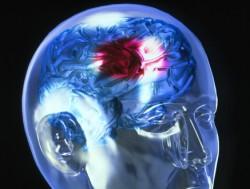 Спайс может привести к ишемическому инсульту